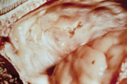 This tiny roundworm is commonly found in populations of eastern white-tailed deer.