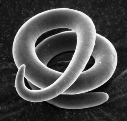 These parasites are commonly found in carnivores, including bears and cougars.