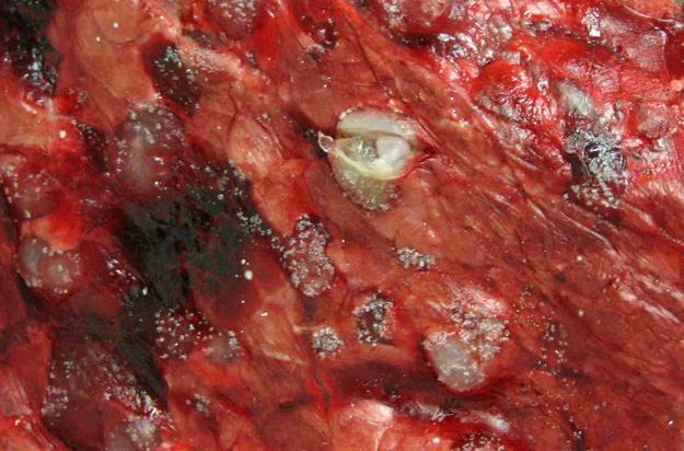 Hydatid Tapeworm