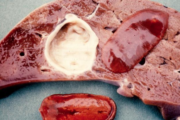 Giant liver flukes